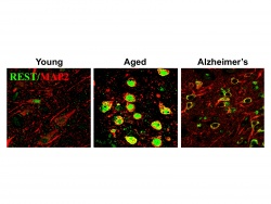 Induction of REST in aging human neurons. The transcriptional repressor REST, expressed at low levels in young adults (left), is induced in normal aging human neurons (center) and may protect against age-related stresses, including abnormal proteins associated with neurodegenerative diseases.  REST is lost in critical brain regions in the early stages of Alzheimer's disease (right), which may predispose to cognitive decline.